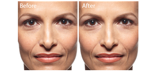 Juvederm Cosmetic   Juvederm - Injections - Rockville - MD
